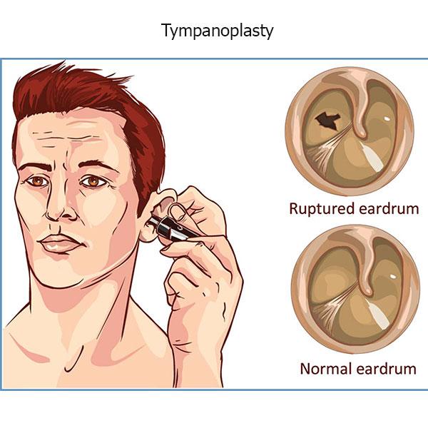 تمپانوپلاستی